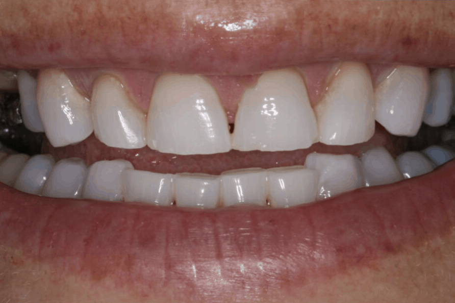 porcelain veneers danbury ct