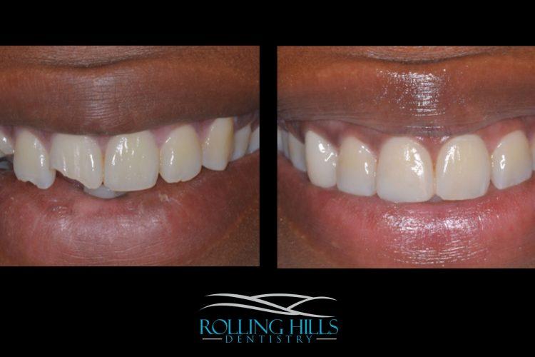composite dental work danbury ct